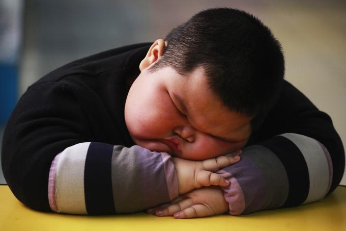 Bambino di 3 anni pesa 57 kg.